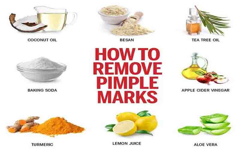 Home Remedy to Remove Pimples